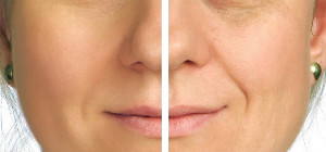 microdermabrasion-A